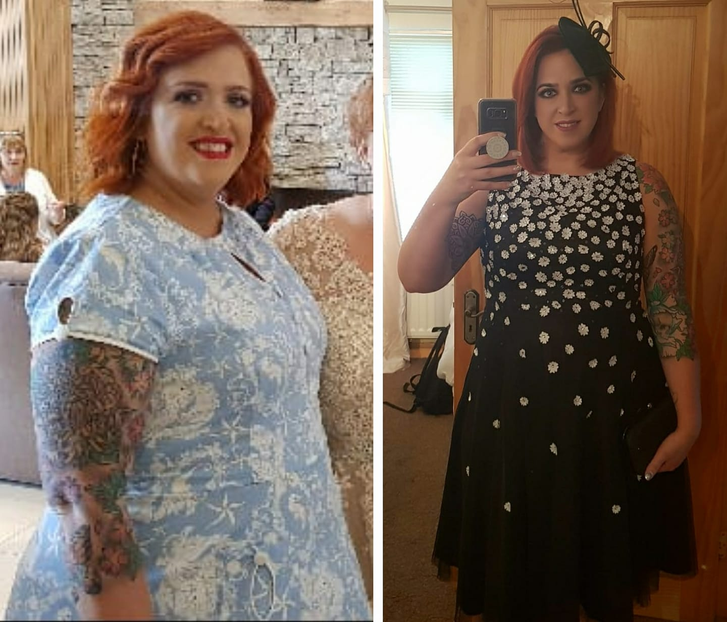 Weight Loss With FATnosis - Ulster Hypnotherapy